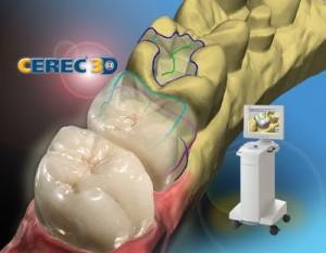 Cerec-300x233