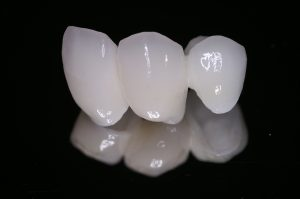 Dale received beautiful porcelain crowns from Arcadia tooth crown dentist Dr. Peter Young.