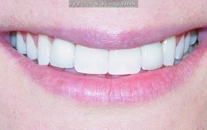 get cosmetic dentistry services from our dentist in Arcadia