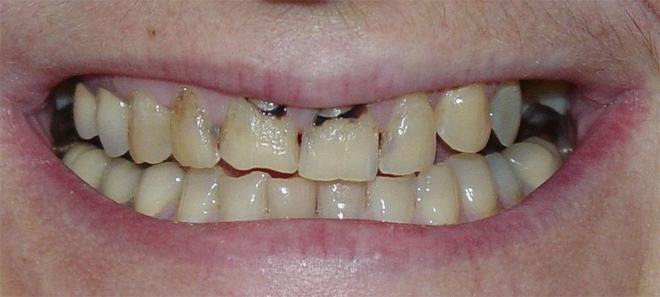 Teeth veneers in arcadia dental veneers near pasadena porcelain dental veneers solutioingenieria Choice Image