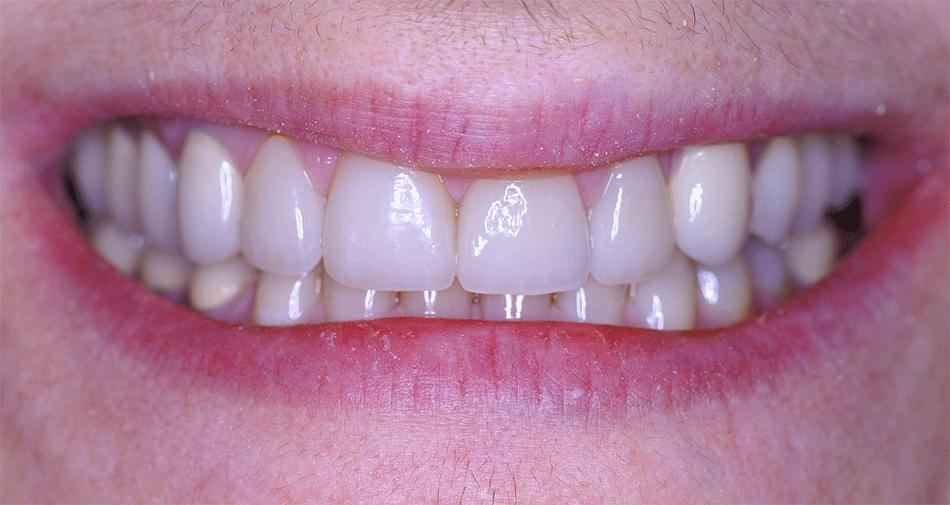 Teeth veneers in arcadia dental veneers near pasadena porcelain teeth veneers in arcadia dental veneers near pasadena porcelain veneers near monrovia ca premier dental esthetics monrovia ca dentist solutioingenieria Choice Image