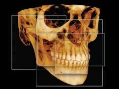 cs9300_fov_skull