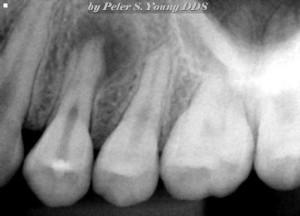 Patient with a bad tooth infection experiencing tooth pain near Pasadena.