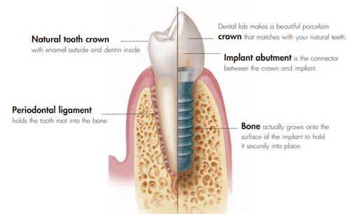Close up photo of a tooth implant cross section.