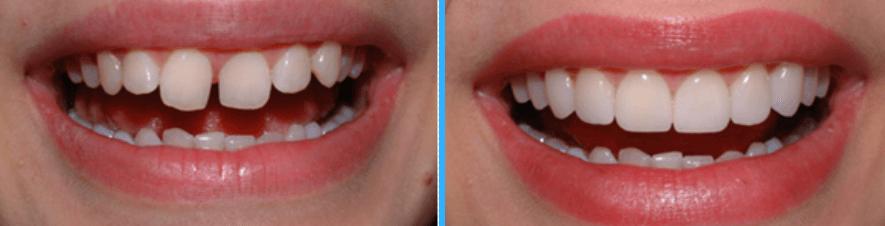 Teeth veneers in arcadia dental veneers near pasadena porcelain free veneer consultation with dr peter young and get 1 free veneer when you purchase 8 or more porcelain veneers solutioingenieria Choice Image
