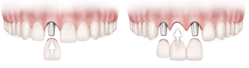 Tooth implants are capable of replacing single or multiple teeth for Monrovia, CA patients.