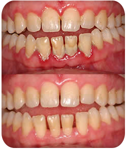 Monrovia, CA patient's gums showing signs of periodontal disease.