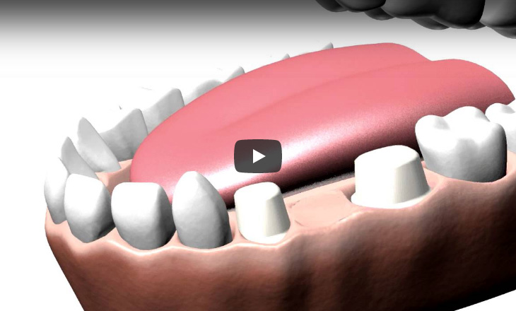 A brief animation depicting the preparation for and application of a dental bridge.