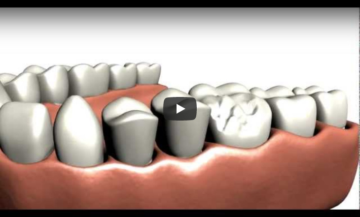 A brief animation depicting the preparation for and application of a dental crown.